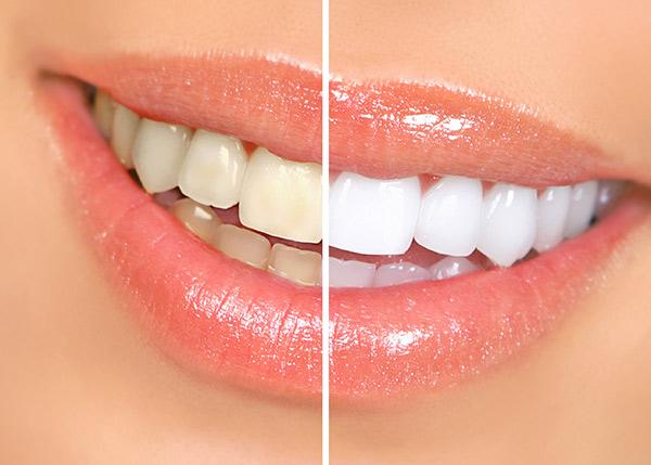 Најбоља паста за зубе за осетљиве зубе